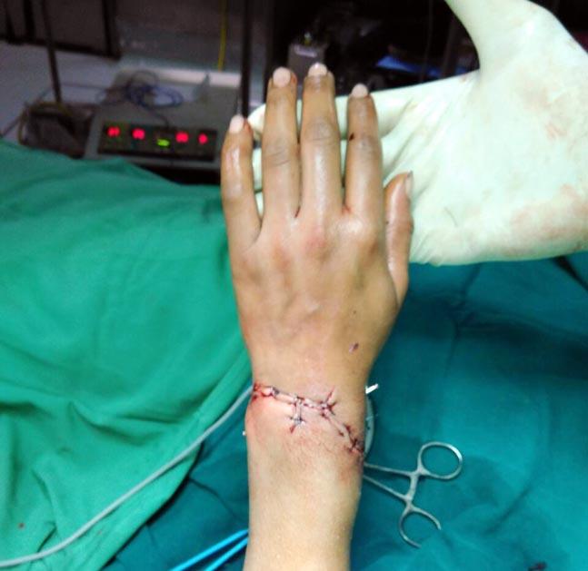 Sand mafia chops off woman hand