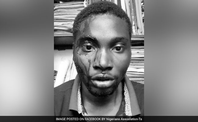 Nigerian student assaulted
